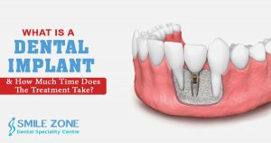 What is a dental implant and how much time does the treatment take