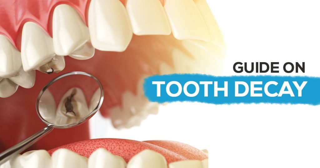 Guide on tooth Decay