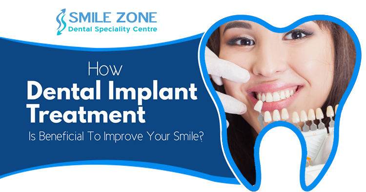 How dental implant treatment is beneficial to improve your smile