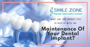 What Are The Foremost Tips To Keep Up With The Maintenance Of Your Dental Implant