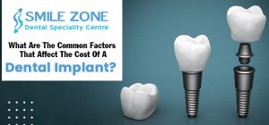 What-are-the-common-factors-that-affect-the-cost-of-a-dental-implant