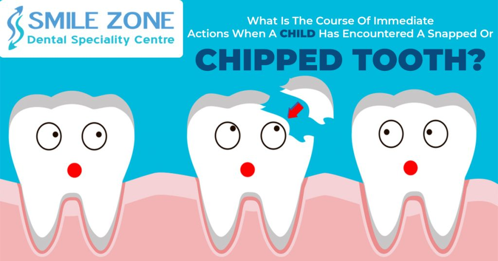 What-is-the-course-of-immediate-actions-when-a-child-has-encountered-a-snapped-or-chipped-tooth