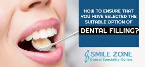 How-to-ensure-that-you-have-selected-the-suitable-option-of-Dental-Filling