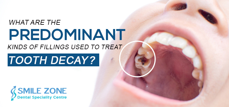 What-are-the-predominant-kinds-of-fillings-used-to-treat-tooth-decay