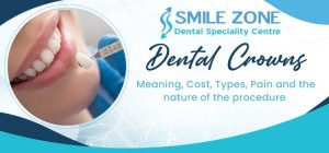 Dental Crowns - Meaning, Cost, Types, Pain and the nature of the procedure