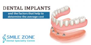 Dental Implants and the factors that help to determine the average cost
