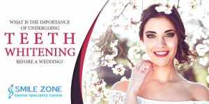 What is the importance of undergoing teeth whitening before a wedding?