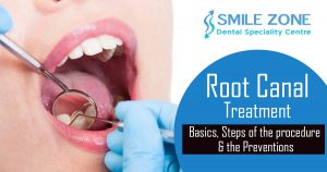 Root canal treatment - Basics, Steps of the procedure & the Preventions