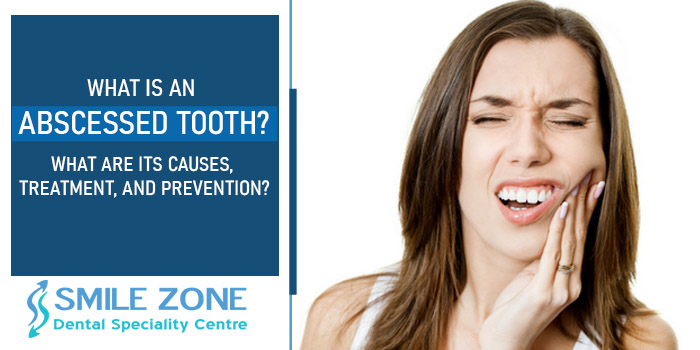 What is an abscessed tooth? What are its causes, treatment, and prevention?