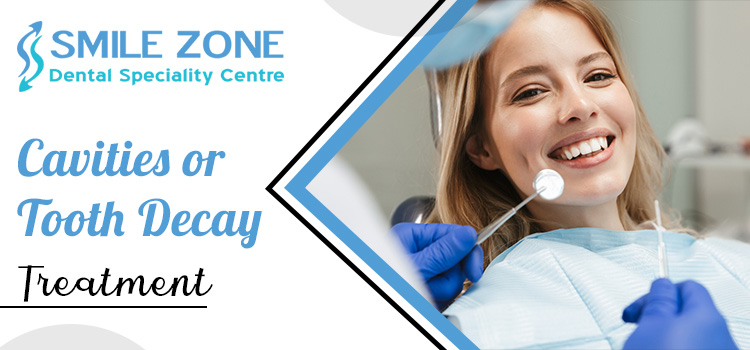 Cavities-or-Tooth-Decay-Treatment
