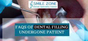 FAQs of Dental filling undergone patient