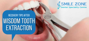 Recovery Tips after Wisdom Tooth Extraction
